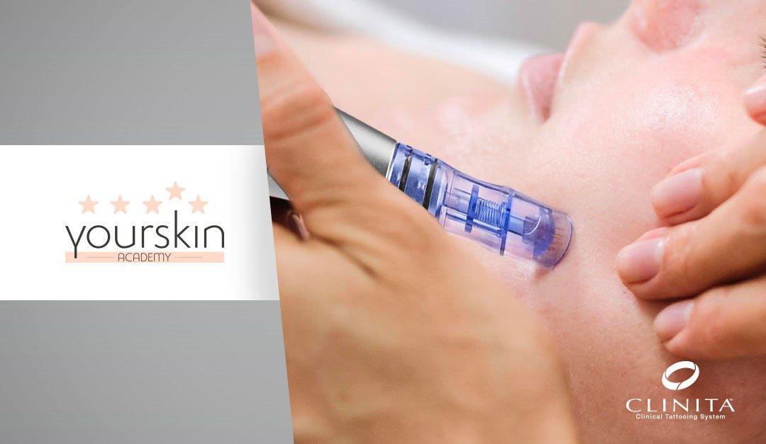 Novità Yourskin Academy: arriva il corso Dermaneedling – bioinduzione di collagene